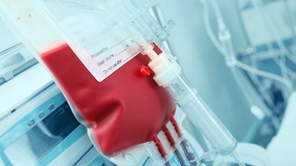 痔疮引起的贫血如何调理?多吃富含铁的食物