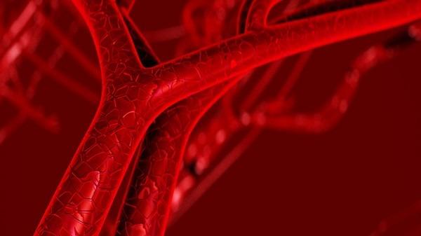血管瘤治疗模式怎么选择?一起来看看吧