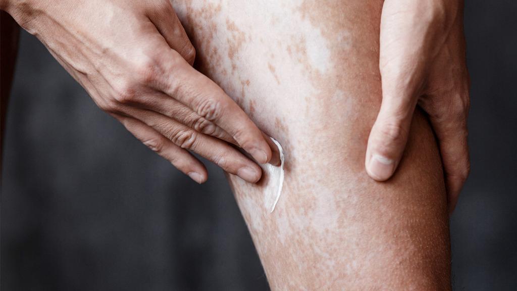 白癜风会有什么症状 早期症状会出现白斑和瘙痒等情况