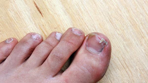 看指甲应该挂皮肤科还是骨科?它取决于你是皮肤病还是骨头病