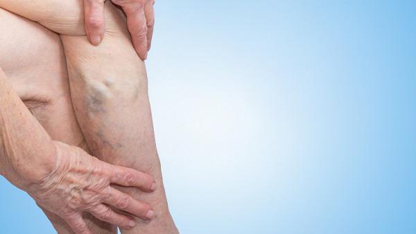 哪些人不适合穿静脉曲张袜 静脉曲张袜的正确穿法