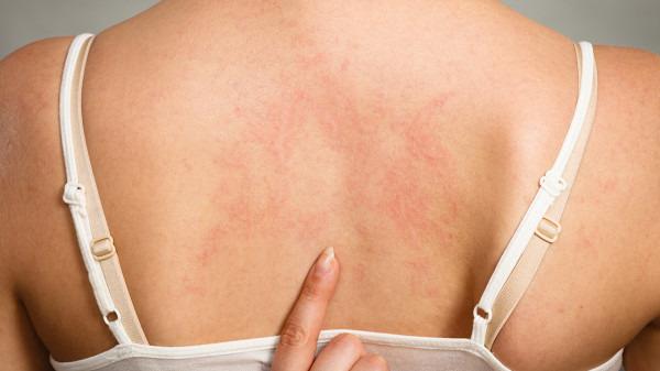 怎么治疗慢性荨麻疹 中医治疗慢性荨麻疹的方法
