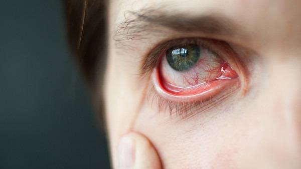 眼睛总痒怎么办?感觉眼睛痒是怎么回事
