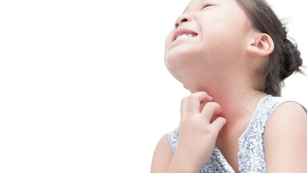 荨麻疹的症状有什么 中医怎么治疗荨麻疹