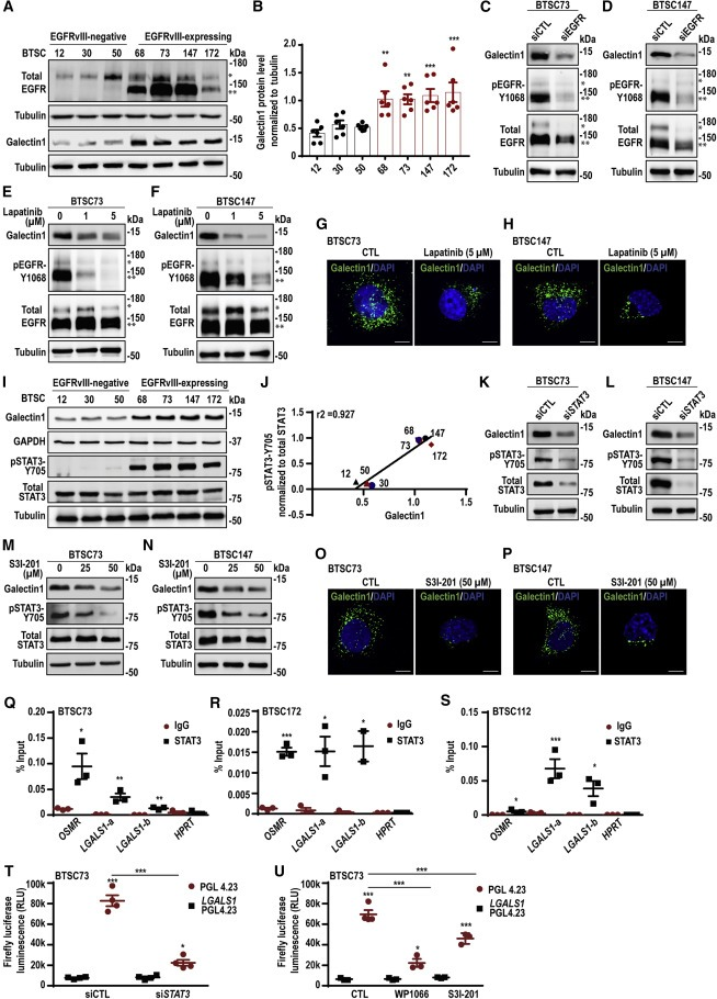 加拿大科学家确定驱动癌症干细胞的蛋白质 或为胶质母细胞瘤患者提供更有效的疗法