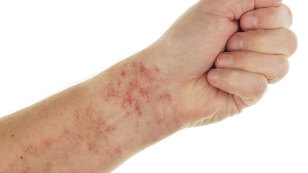 还在为荨麻疹而烦恼吗 教你7个治疗荨麻疹的偏方