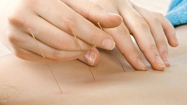 针灸能治疗慢性前列腺炎吗 中医治疗前列腺炎的3种方法