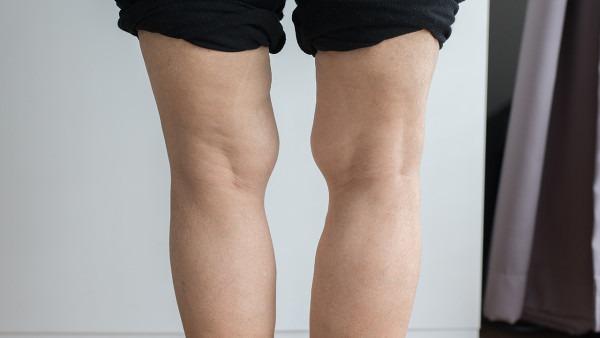 xo型腿矫正方法有哪些 矫正xo型腿最常用的3种方法