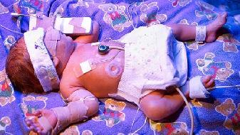 新生儿拉肚子最快的方法?新生儿拉肚子屁屁红怎么办?
