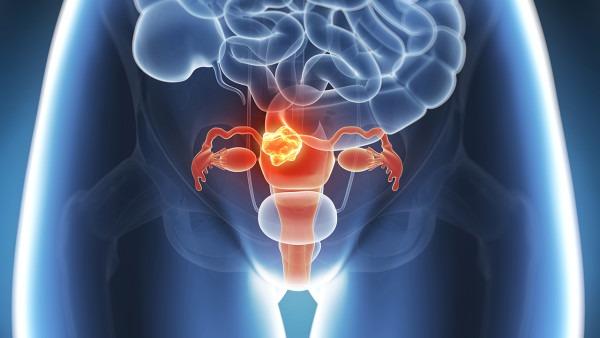 宫颈糜烂重度怎么治疗 重度宫颈糜烂的3个治疗方法