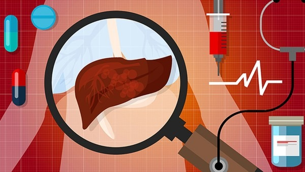 肝癌的介入治疗有效吗 介入治疗有哪些风险