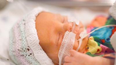 新生儿腭裂怎么办?新生儿腭裂挂什么科?