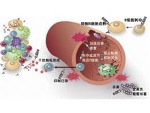 ANCA相關性血管炎