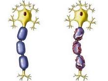 2型糖尿病性周圍神經病變