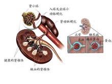 1型糖尿病腎病