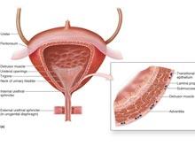 膀胱軟斑病