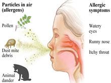 變應性鼻炎