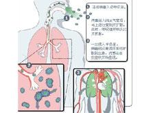 病毒性咽炎