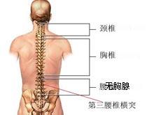 第三腰椎橫突綜合征