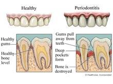 單純性牙周炎