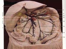 肠系膜裂孔疝