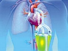 單側肺氣腫