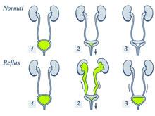 膀胱輸尿管反流