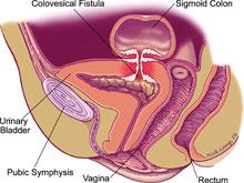 膀胱乙狀結腸瘺