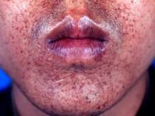 斑痣性錯構瘤病