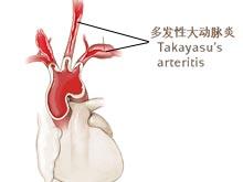 多发性大动脉炎