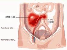 腹膜后血肿