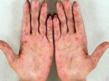 混合性結締組織病