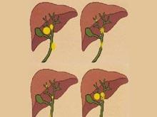 肝母細胞瘤