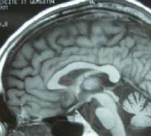 橄榄体脑桥小脑萎缩