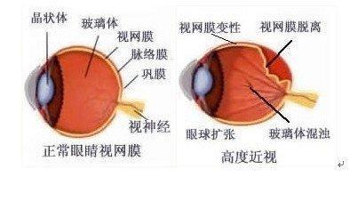 巩膜葡萄肿