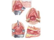 加特納管囊腫