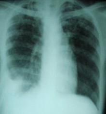 結核性膿胸