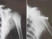 肩關節結核