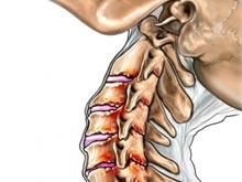 頸部脊髓水腫