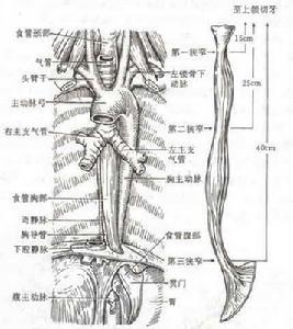 胡桃夹食管
