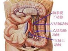 結腸血管擴張癥