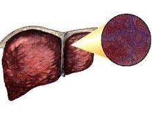 急性肝衰竭