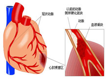 急性心肌梗塞