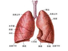 結核性胸膜炎