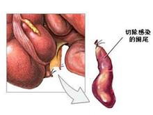 急性闌尾炎