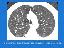 淋巴管肌瘤病