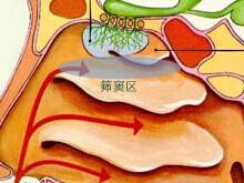 慢性鼻竇炎