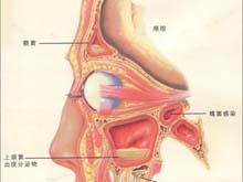 慢性上頜竇炎