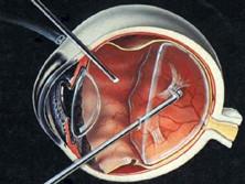 脉络膜视网膜炎