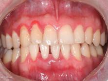 慢性牙周炎